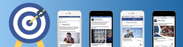 Examples of Facebook Ads on mobile devices.